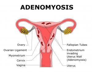 adenomyose